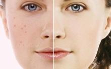 Acne: causas, tipos, sintomas e tratamentos